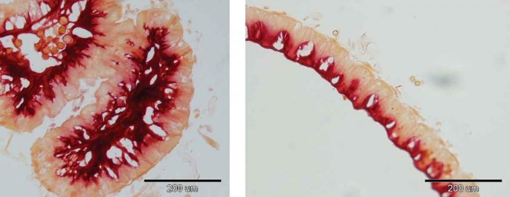 Fig 2: Refacerea citoplasmei cu ajutorul Probioticului Dulcofruct